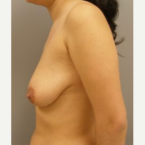 25-34 year old woman treated with Breast Lift with Implants before 3122346