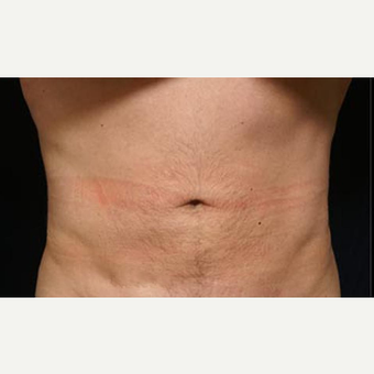 35 year old man treated with Liposuction after 3072474