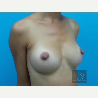 25-34 year old woman treated with Mentor Breast Implants after 3726005