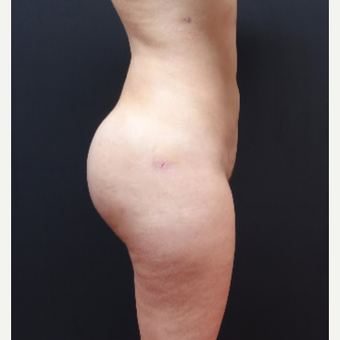 25-34 year old woman treated with Butt Implants after 3629829