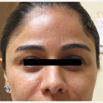 25-34 year old woman treated with Acne Scars Treatment before 3375029