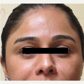 25-34 year old woman treated with Acne Scars Treatment after 3375029