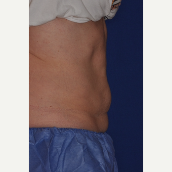 35-44 year old woman treated with CoolSculpting after 3770937