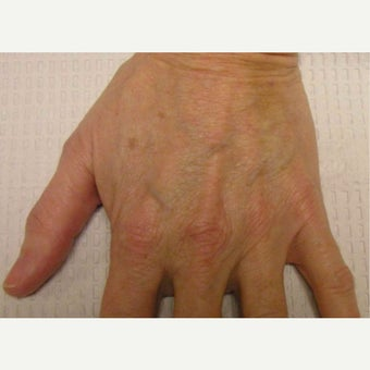 45-54 year old woman treated with Restylane before 2045364