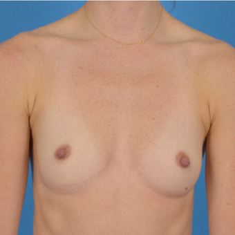 25-34 year old woman treated with Breast Implants before 3066270