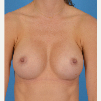 25-34 year old woman treated with Breast Implants after 3066270