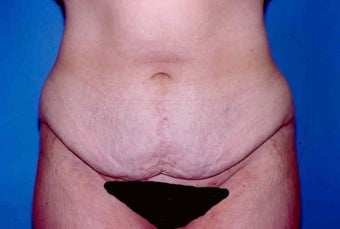 Tummy Tuck before 615622