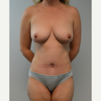 35-44 year old woman treated with Breast Fat Transfer after 3408345