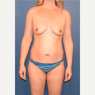 35-44 year old woman treated with Breast Fat Transfer before 3408345