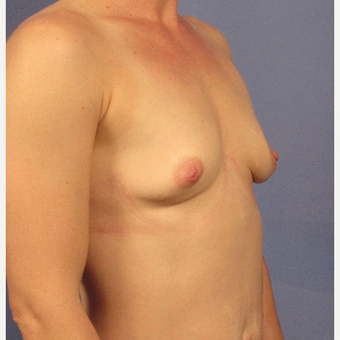 25-34 year old woman treated with Breast Augmentation before 3321899
