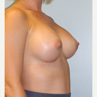 25-34 year old woman treated with Breast Augmentation after 3321899