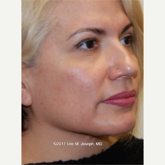 45-54 year old woman treated with Neck Liposuction