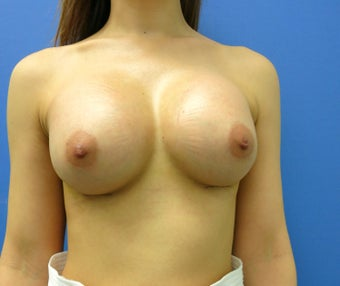 25 year old Breast Augmentation, Mentor anatomical 345 cc implants. after 1463072