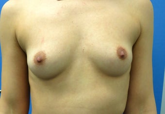 25 year old Breast Augmentation, Mentor anatomical 345 cc implants. before 1463072