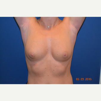 25-34 year old woman treated with Breast Augmentation before 3663915