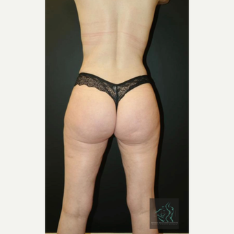 35-44 year old woman treated with Vaser Liposuction after 2809172