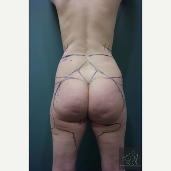 35-44 year old woman treated with Vaser Liposuction before 2809172