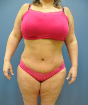Hourglass Tummy Tuck by Dr. Wilberto Cortes after 371932