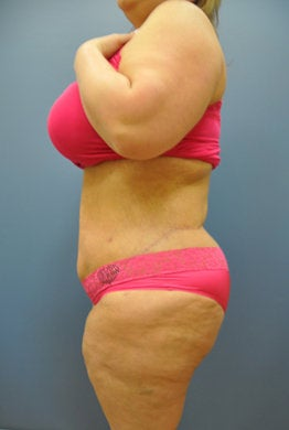 Hourglass Tummy Tuck by Dr. Wilberto Cortes 371932
