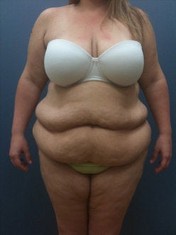 Hourglass Tummy Tuck by Dr. Wilberto Cortes before 371932