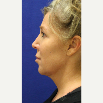45-54 year old woman treated with Chin Liposuction after 3407070