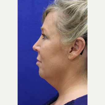 45-54 year old woman treated with Chin Liposuction before 3407070