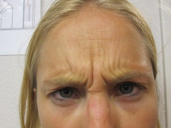 Dysport in the Forehead and Glabella a botulinum toxin treatment after 1043748