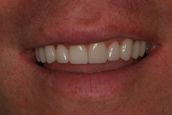 Smile Makeover after 1038889