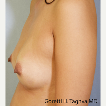 35-44 year old woman treated with Breast Fat Transfer after 3726939