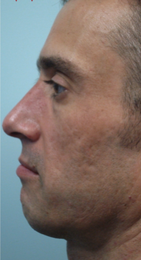 35-44 year old man treated with Laser Resurfacing before 2817412