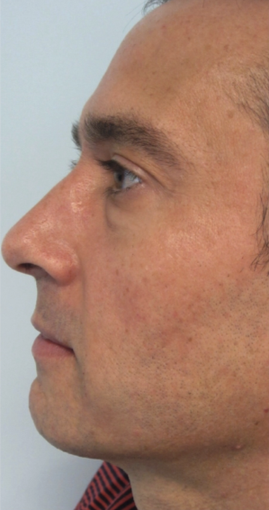 35-44 year old man treated with Laser Resurfacing after 2817412