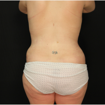 34 year old female with abdominoplasty (tummy tuck) and liposuction of hips after 3576194