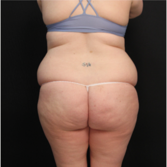 34 year old female with abdominoplasty (tummy tuck) and liposuction of hips before 3576194