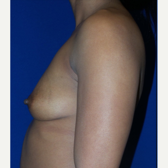 37 year old mother of three treated with Breast Augmentation before 3320058