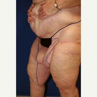 55-64 year old woman treated with Thigh Lift after Weight Loss 1949995