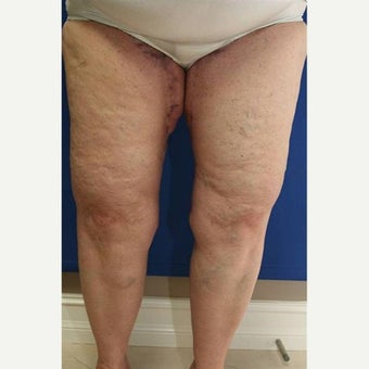 55-64 year old woman treated with Thigh Lift after Weight Loss after 1949995