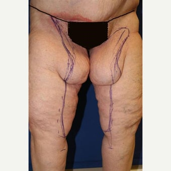 55-64 year old woman treated with Thigh Lift after Weight Loss before 1949995