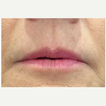 45-54 year old woman treated with Juvederm Volbella XC before 3702359