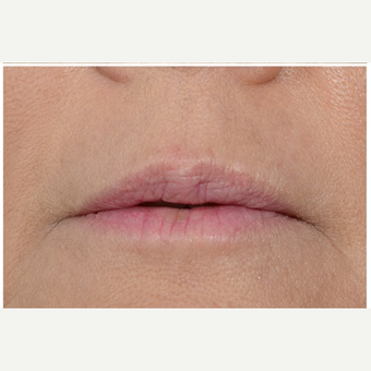 45-54 year old woman treated with Juvederm Volbella XC after 3702359