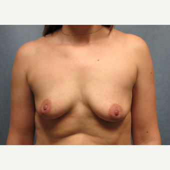 25-34 year old woman treated with Breast Augmentation before 3635438