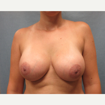 25-34 year old woman treated with Breast Augmentation after 3635438