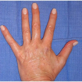 45-54 year old woman treated with Voluma after 1626311