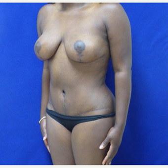 32 y.o. – female – Wise pattern mastopexy with abdominoplasty (mommy makeover) after 3401333