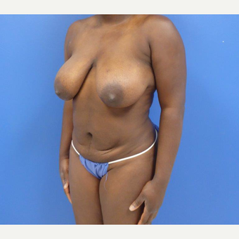 32 y.o. – female – Wise pattern mastopexy with abdominoplasty (mommy makeover) before 3401333
