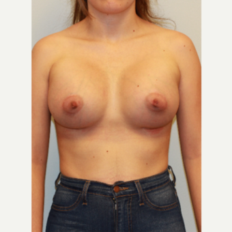 25-34 year old woman treated with Breast Augmentation after 3027407