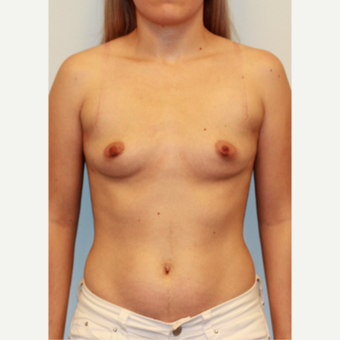 25-34 year old woman treated with Breast Augmentation before 3027407