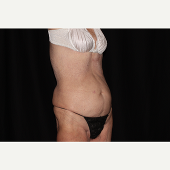 75 and up year old woman treated with SculpSure after 3748731