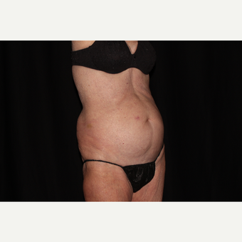 75 and up year old woman treated with SculpSure before 3748731