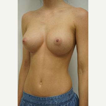25-34 year old woman treated with Breast Augmentation after 3844606