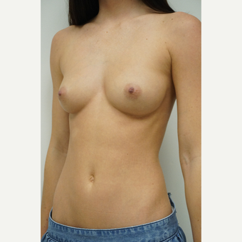25-34 year old woman treated with Breast Augmentation before 3844606